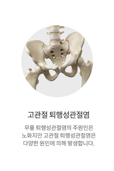퇴행성관절염